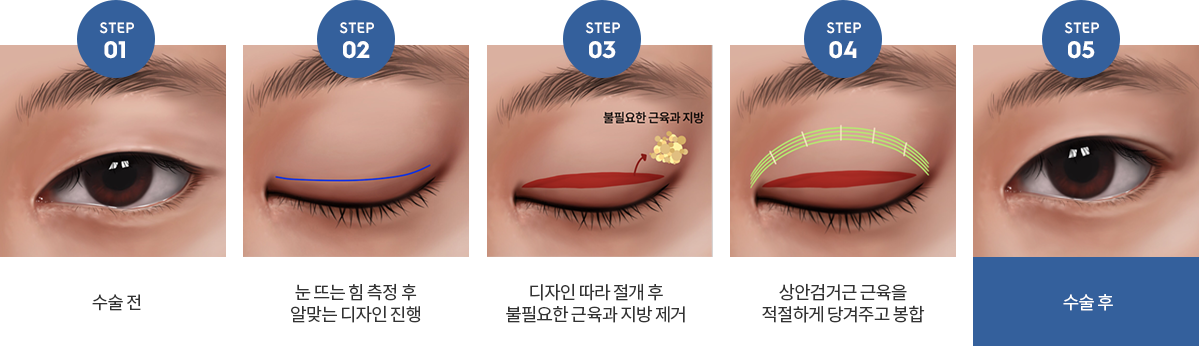 시선무쌍눈매교정수술방법