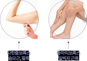 다한증보톡스승모근,팔뚝종아리보톡스말벅지근육